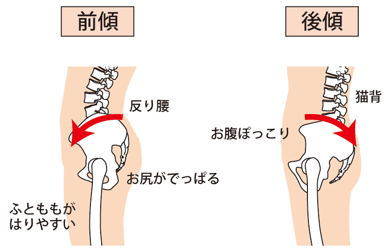 骨盤の前傾と後傾のイラスト