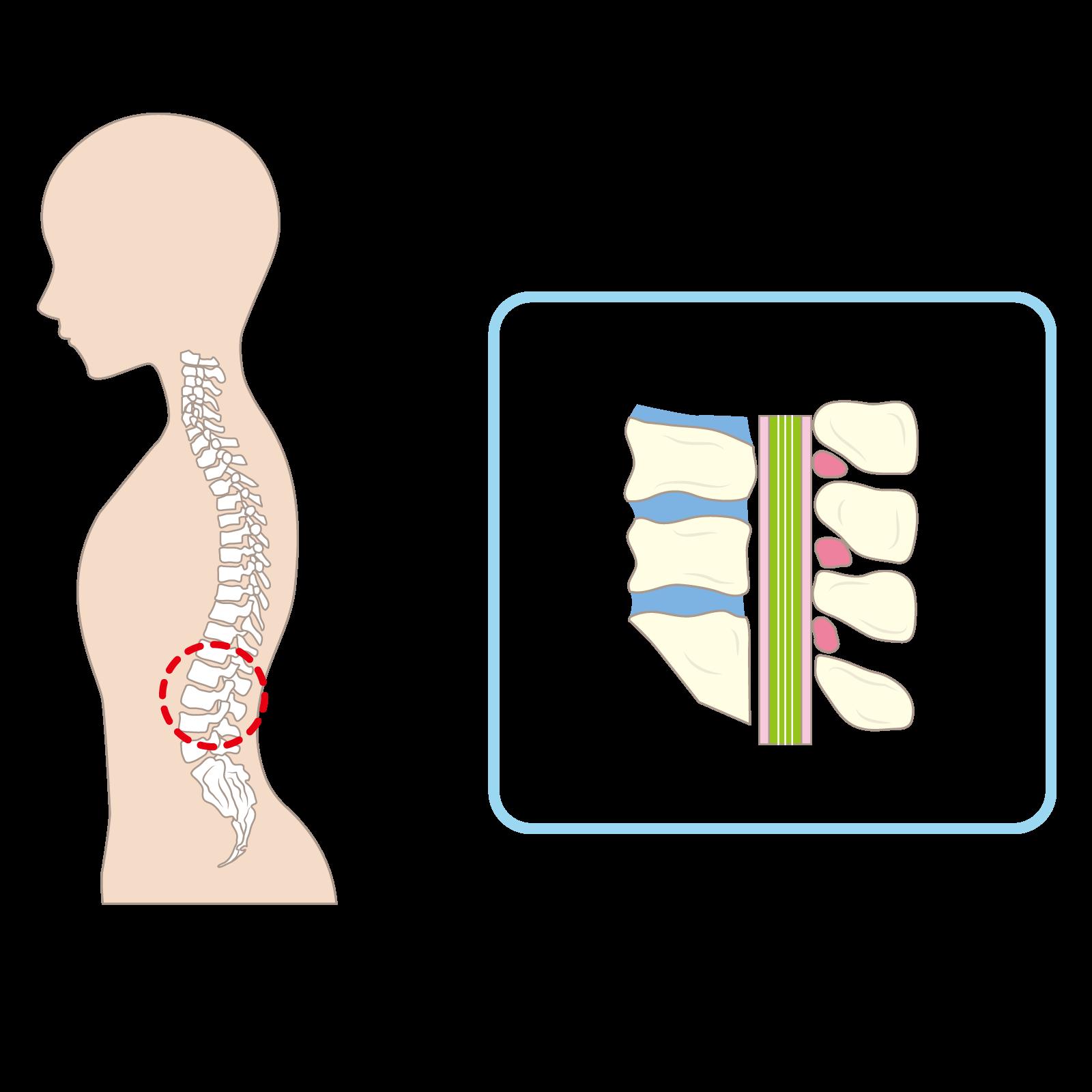 腰椎と脊柱管のイラスト